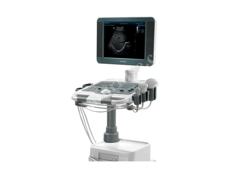 Siyah Beyaz Ultrason Cihazı